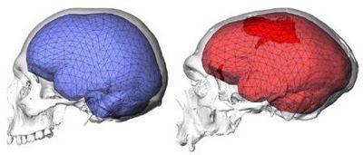 Изучение древних черепов показало, что важен не только размер мозга, но и его форма