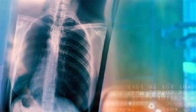 Казахстан получит $17,5 млн на борьбу с туберкулезом