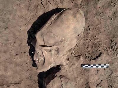 Ученых озадачили найденные в баксанском ущелье черепа длинноголовых людей