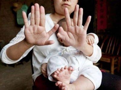 В китае родился ребенок с 15 пальцами на руках и 16 на ногах