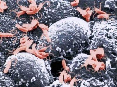 Во всём виноваты бактерии